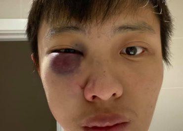"""""""არ მინდა შენი კორონავირუსი ჩემს ქვეყანაში"""" - სასტიკად ნაცემი ჩინელი სტუდენტი - ლონდონი"""
