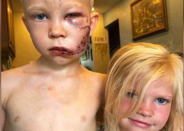 6 წლის ბიჭმა პატარა და გადაარჩინა - 90 ნაკერი დაადეს და არ ნანობს