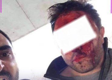 """+18 (ვიდეო) - """"გავფაქტე ვირთხის და კურდღლის ნაჯვარი"""" - სისხლიანი ფოტო და სისხლიანი გარჩევა შემოსავლების სამსახურის თანამშრომლებს შორის"""